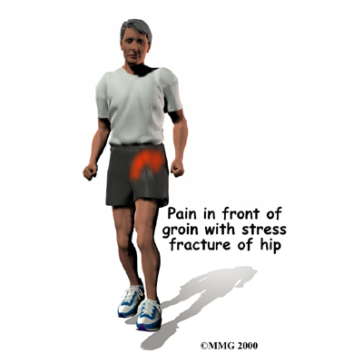 hip stress fracture pain