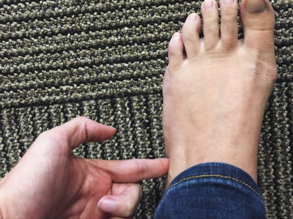 side of foot pain while running